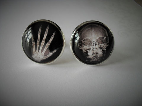 HAND,&,SKULL,X-RAY,Cufflinks,/,Gift,for,Radiologist,Him,Doctor,XRay,Cuff,Links,Coworker,Boxed,Accessories,Cuff_Links,x-Ray_cufflinks,Fathers_Day_Gift,Groomsmen_Gift,Hand_Xray,Radiologist_Gift,Gift_For_Doctor,Bones,Gift_For_Him,Cufflink,Skull_Xray,Spooky_Jewellery,coworker_gift